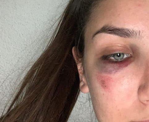 Uznemirujuće: Djevojka iz Ključa objavila fotografije nakon što je pretučena