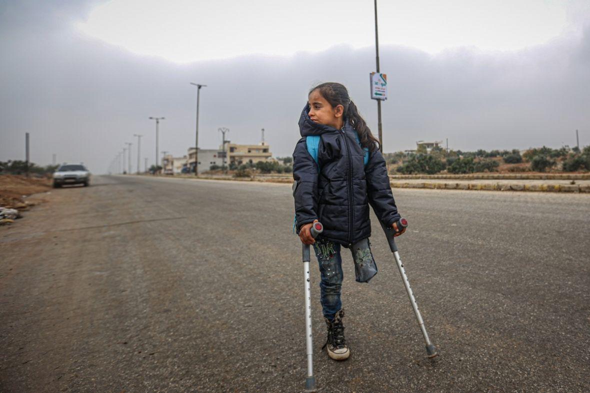 Teška sudbina sirijske djevojčice bez noge