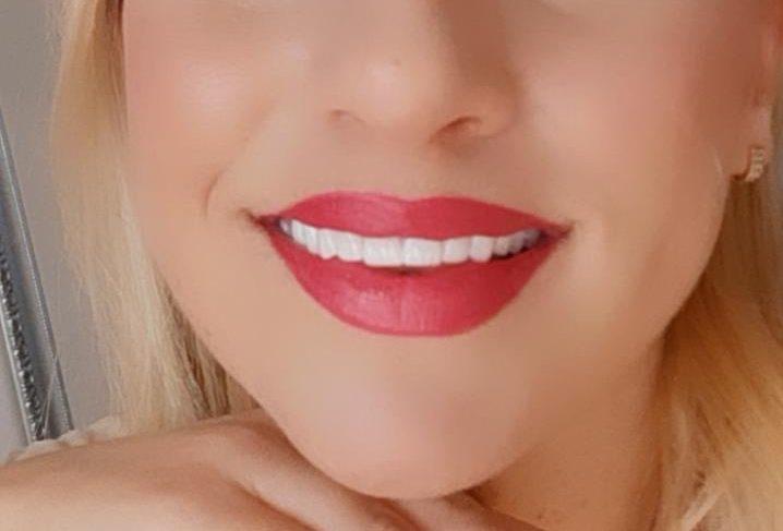 """Stomatološka ordinacija """"dr Mudrinić"""" vas nagrađuje: Osvojite izbjeljivanje zuba"""