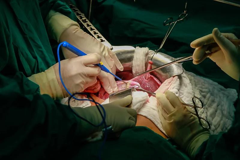 U BiH prvi put od početka pandemije transplantiran organ